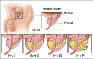 prostat2