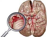 beyin+kanamasi+tansiyon