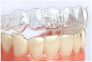 ortodonti-7