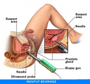 prostat-biyopsisi