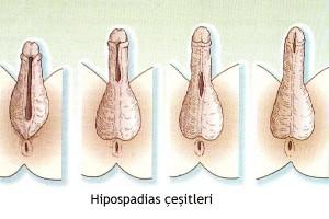 hipospadias