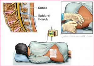 epidural-anestezi