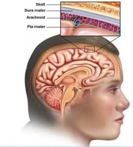 epilepsiya x