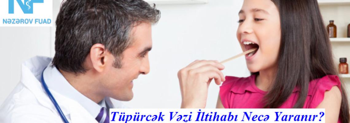 Tüpürcək Vəzi İltihabı və Müalicəsi