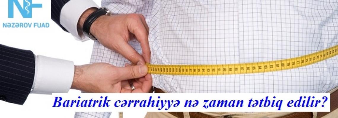 Mədə Kiçiltmə Əməliyyatı – Sleeve Gastrektomiya