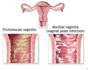 Valinal-enfeksiyon-gebelik-mantar
