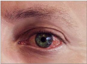 alerjik-konjonktivit-14