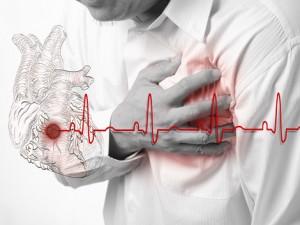 infarkt-srdce-clanok
