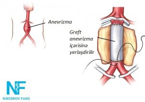 anevrizma-3