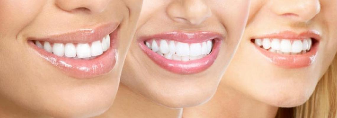 Diş Ləkələri Niyə Yaranır