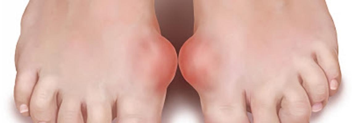 Podaqra Xəstəliyi (Gut)