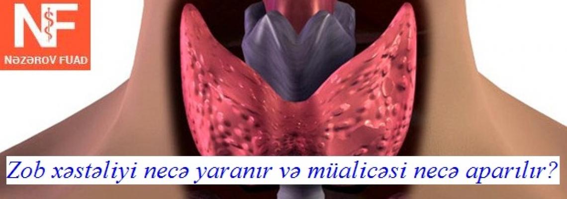 Tireotoksikoz (zob) Əməliyyatı